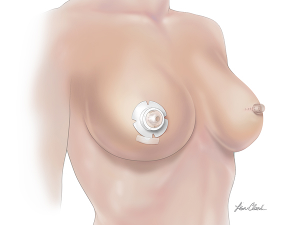 Biodesign Nipple Reconstruction Cylinder