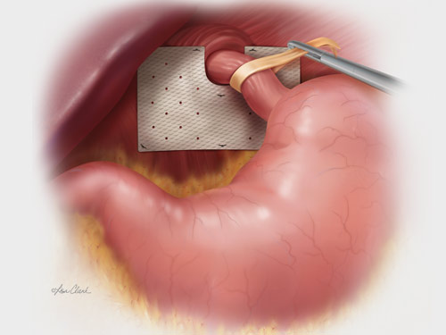 Biodesign<sup>®</sup> Hiatal Hernia Graft