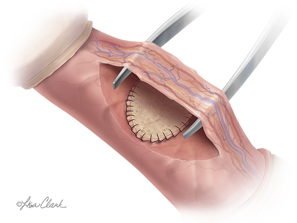 Biodesign Peyronies Repair Graft