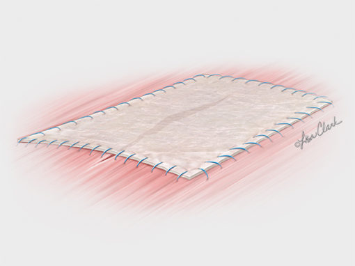 Biodesign<sup>®</sup> 4-Layer Tissue Graft