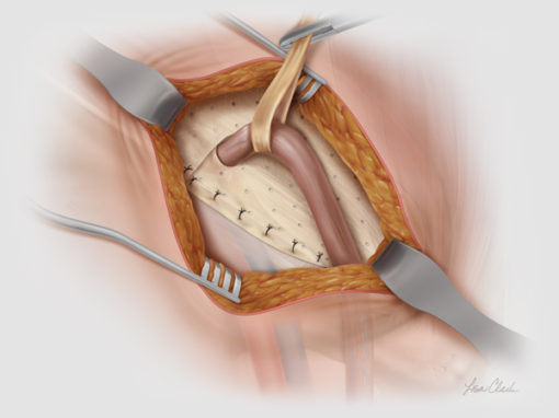 Biodesign<sup>®</sup> Inguinal Hernia Graft