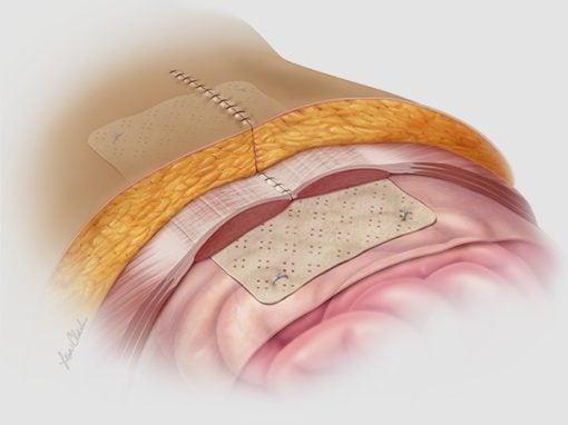 Biodesign<sup>®</sup> Hernia Graft